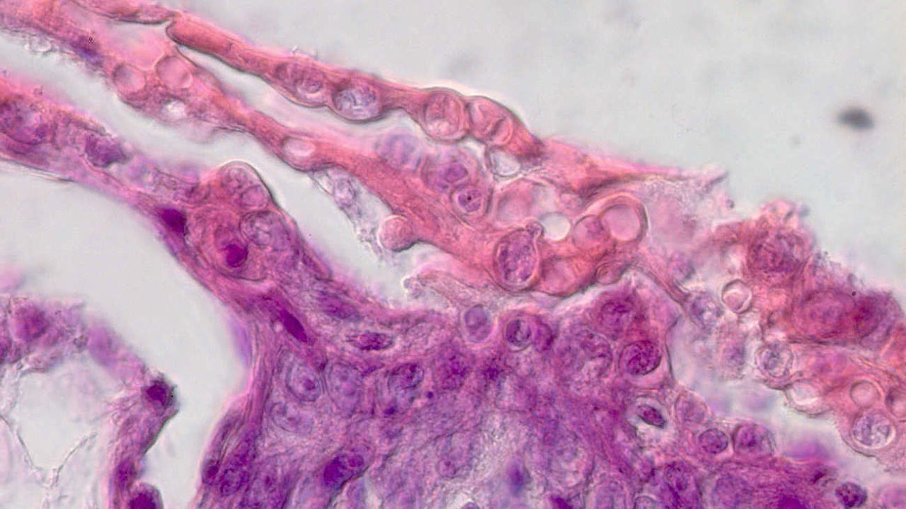 The deadly fungus in a histological sample of frog skin. | Frank Mutschmann